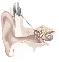 200px-Cochlear_implant